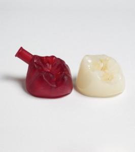 зубной протез PICO 2