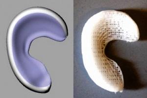 Напечатанный имплантат помогает регенерировать мениск