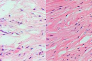 ткань регенирированного мениска колена