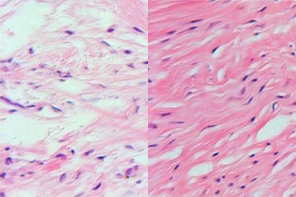 Неактивное носительство вируса гепатита в