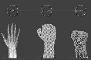 Российский 3D-стартап в медицине